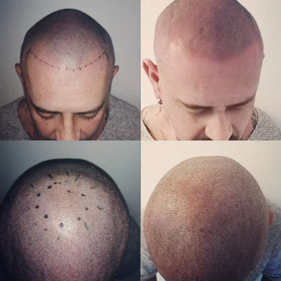 Head scar cover up in uk