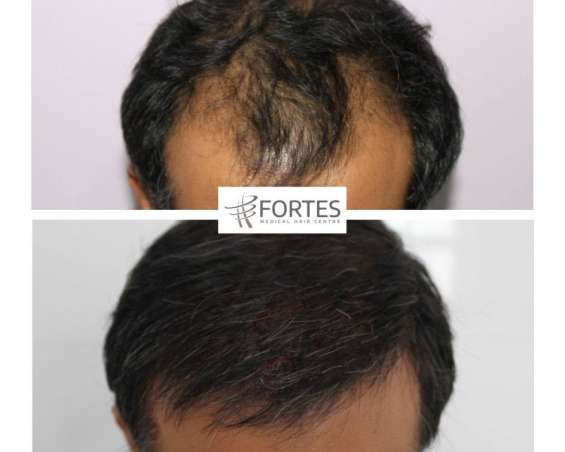 Hair transplant in london | fortes clinic