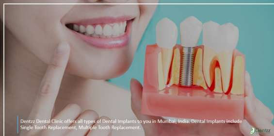 Know about the different types of dental implants